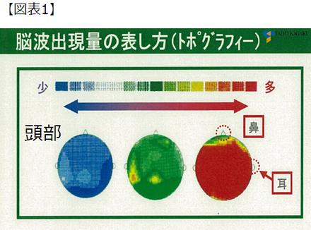 脳波出現量の表し方(トポグラフィー)